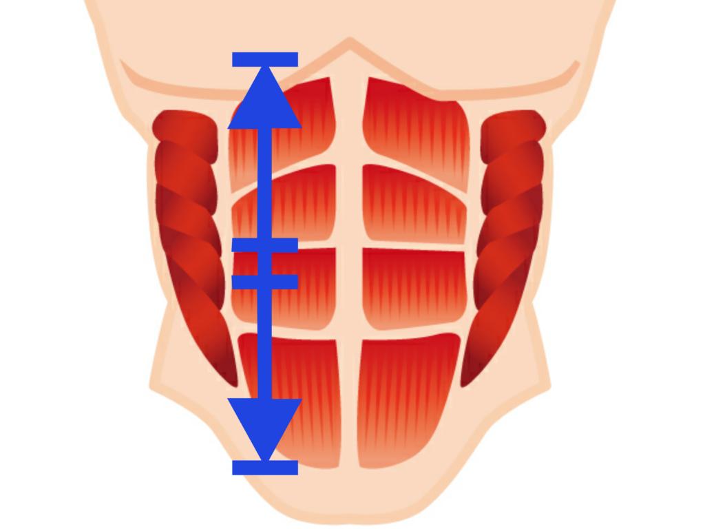 腹直筋離開に対するアプローチ