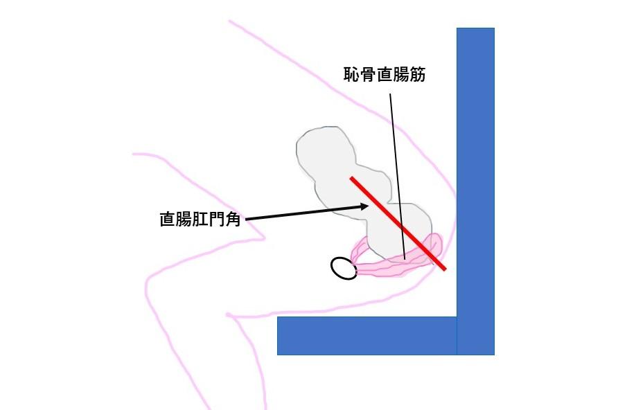 直腸肛門角、恥骨直腸筋