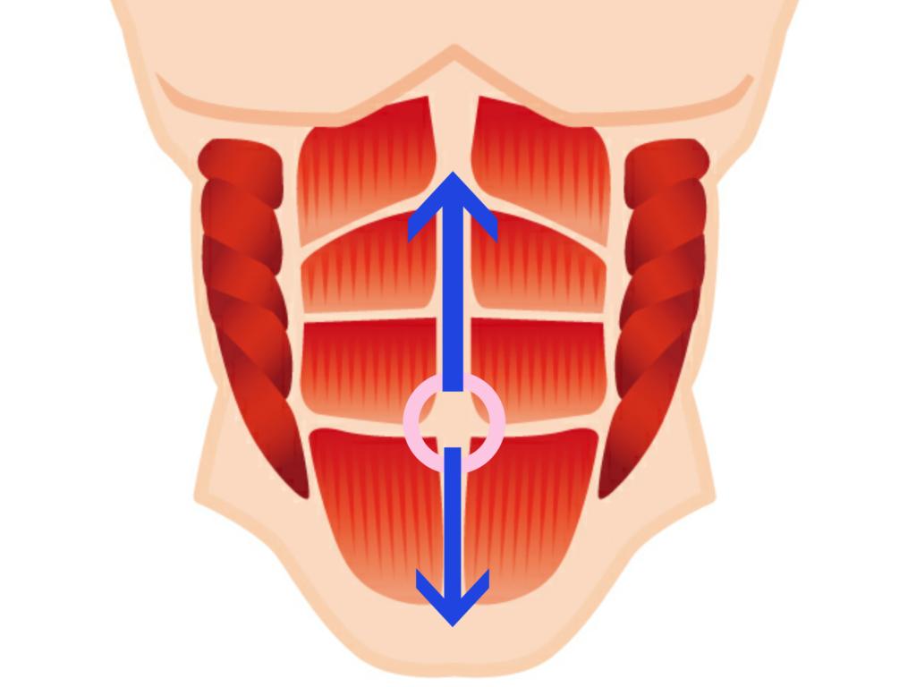 腹直筋離開の評価